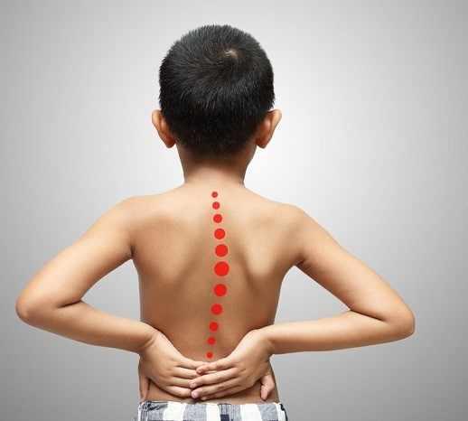 У мальчика на спине вертикальная кривая линия из красных точек